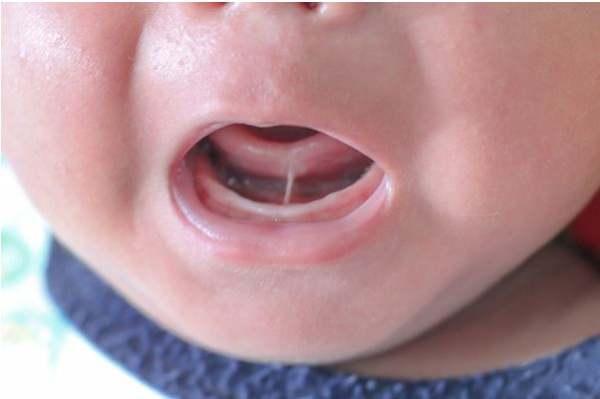 家长注意了,不要轻易给孩子做Tongue-tie手术